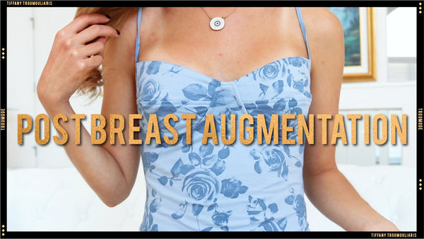 MY BREAST AUGMENTATION EXPERIENCE | Post Boob Job