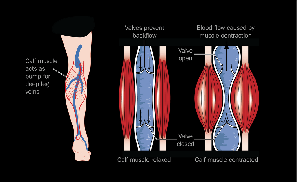 Active compression helps to combat this by aiding blood circulation through  using external pneumatic compression. This effectively pumps blood towards  the ... ce8497429