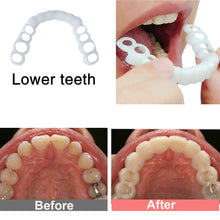 Load image into Gallery viewer, Snap On Smile Men Women False Teeth Cover