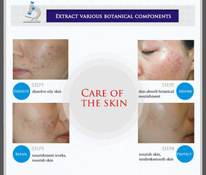 Acne Spots Anti Ageing Moisturizing cream - unique innovation pro