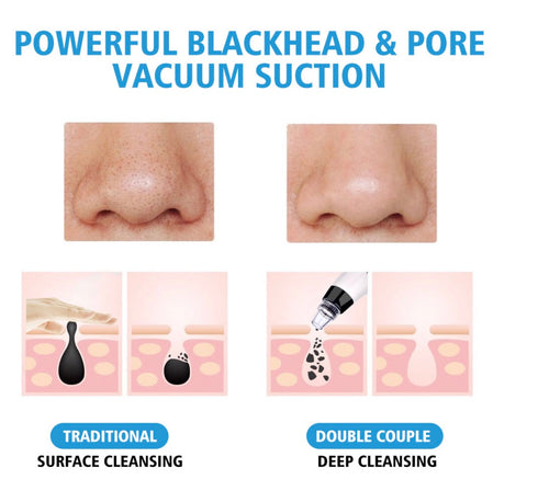 Royale Face deep cleaning pore vacuum Spa tool (BLACKHEAD REMOVAL)