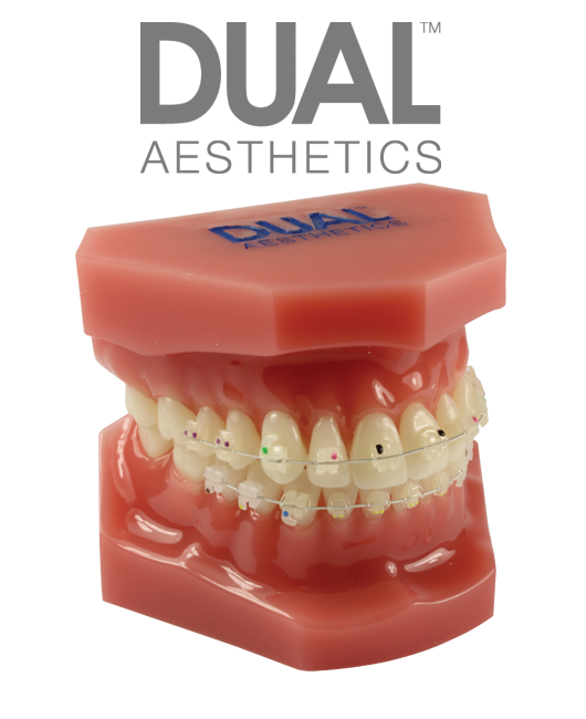 Consultation Model with Dual™ Ceramic Brackets