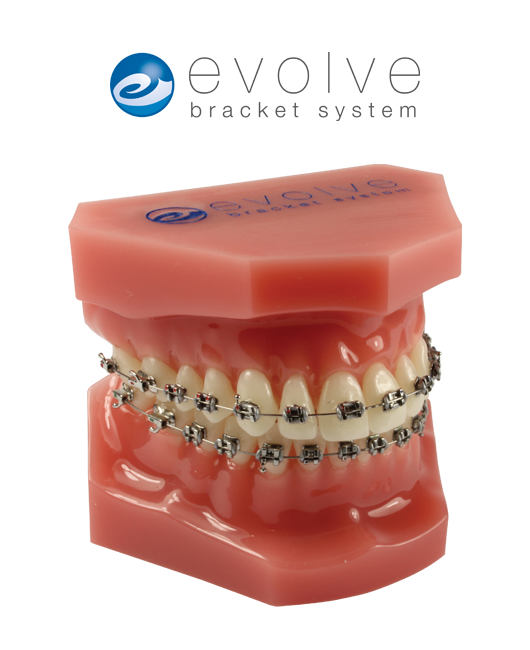 Consultation Model with Evolve™ Stainless Steel Brackets