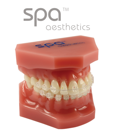 Consultation Model with Spa™ Brackets