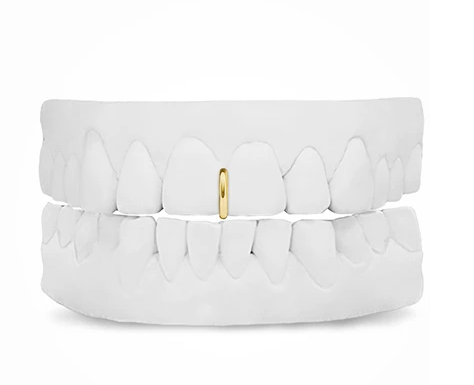 Gold Spacer Grill
