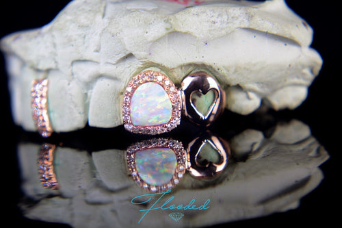 Diamond Encrusted Opal Grill with Diamond Spacer & Solid Cap