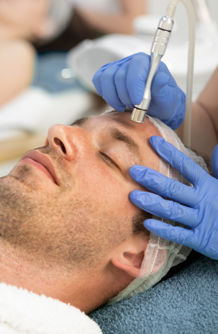 Microdermabrasion facial - What You Need to Know