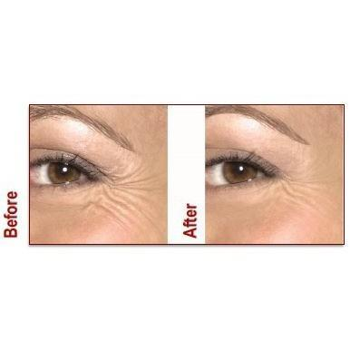 France Laure - The Duo-Lift System: An at Home Botox Replacement - Breizh Esthetic & Salon Supply - 4