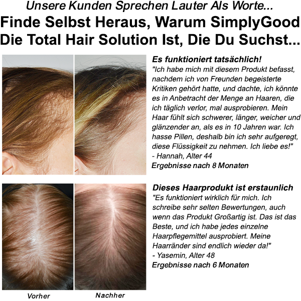 TOTAL HAIR SOLUTION