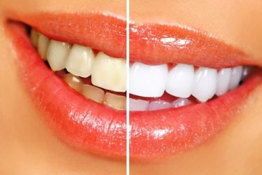 Natural Teeth Whiteners