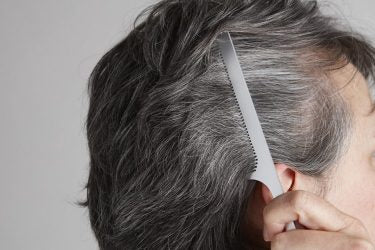 Premature Grey Hair: Causes And Prevention