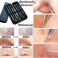 Stainless Steel Blackhead Remover Tool