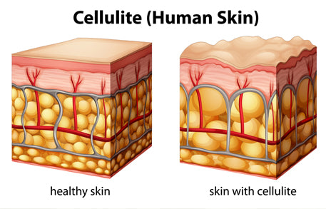 Image result for collagen and cellulite