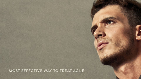 Most Effective Way to Treat Male Acne