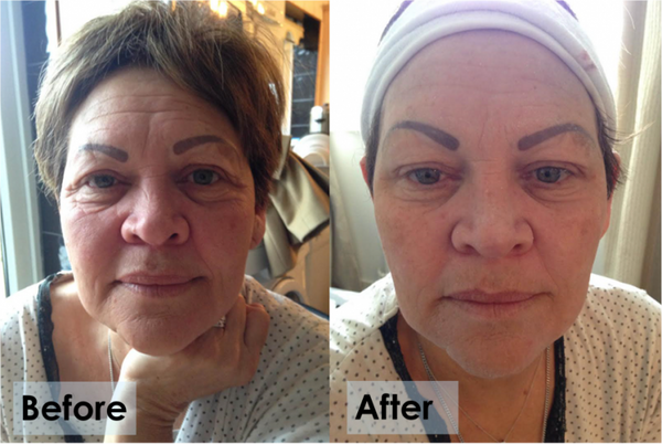 Instant Facelift- Improved?!