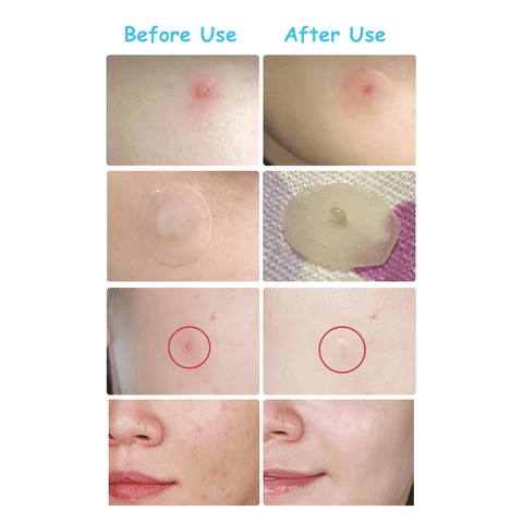Lanbena Acne Pimple Patch