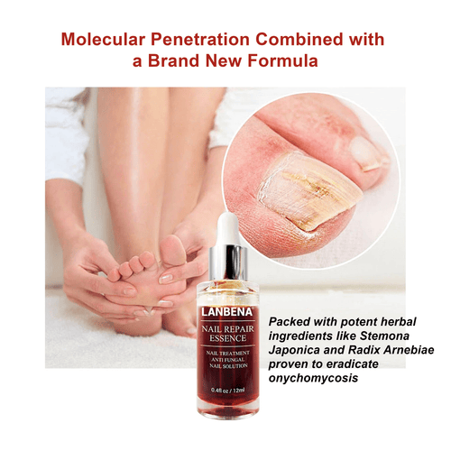 Lanbena Fungal Nail Repair Serum Cosmetics