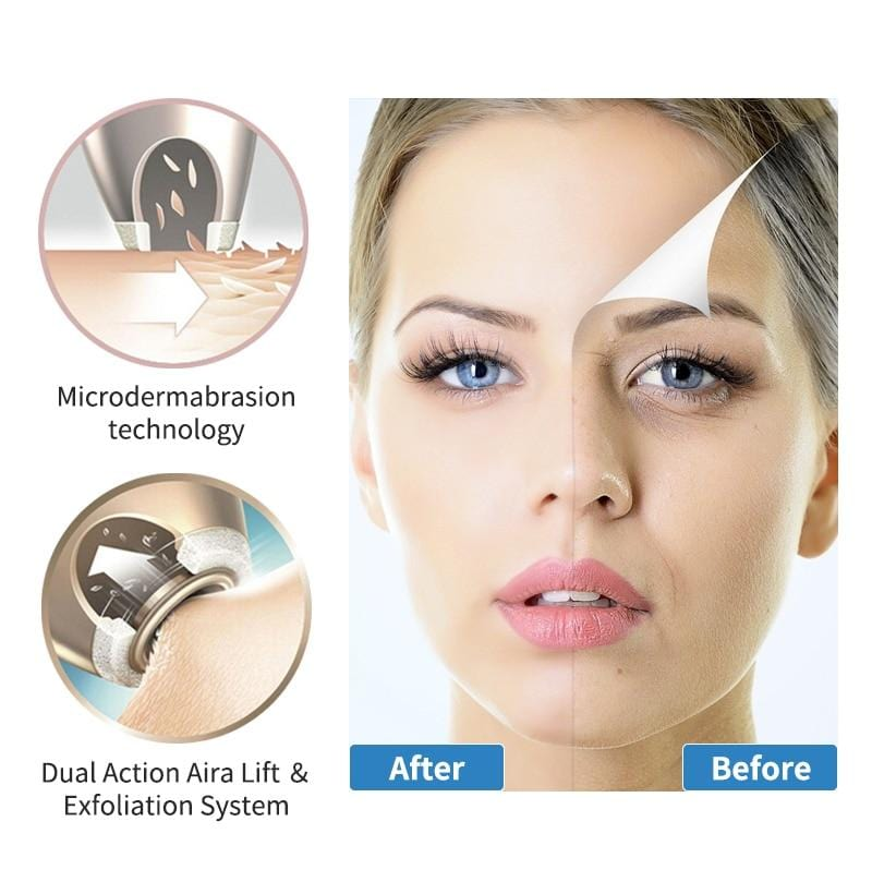NEWDERMO Diamond Microdermabrasion Peel Machine