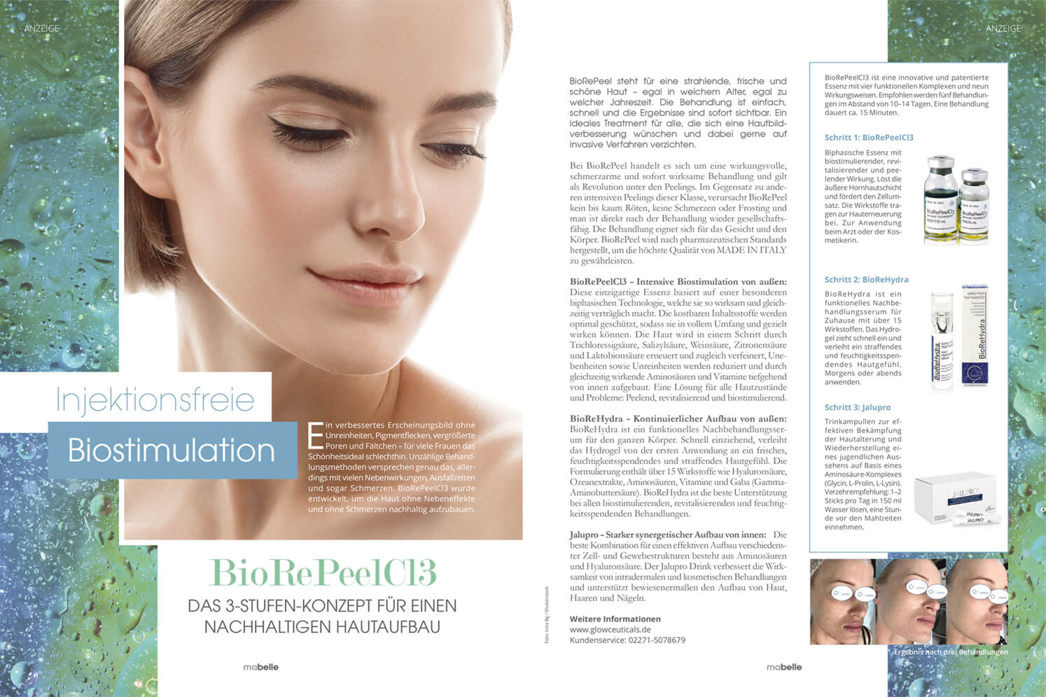 BioRePeel Treatment Bio Peeling TCA Glowceuticals Kosmetik Biostimulation Kollagen