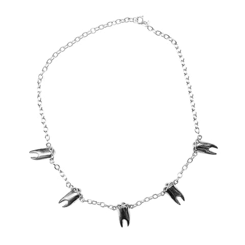 BABY TEETH CHOKER