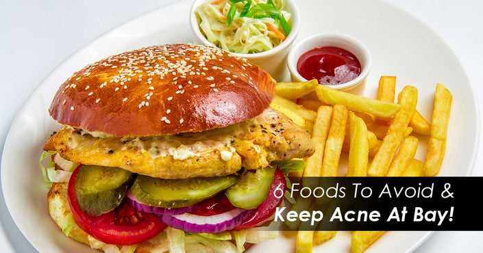 6 Foods To Avoid And Keep Acne At Bay!