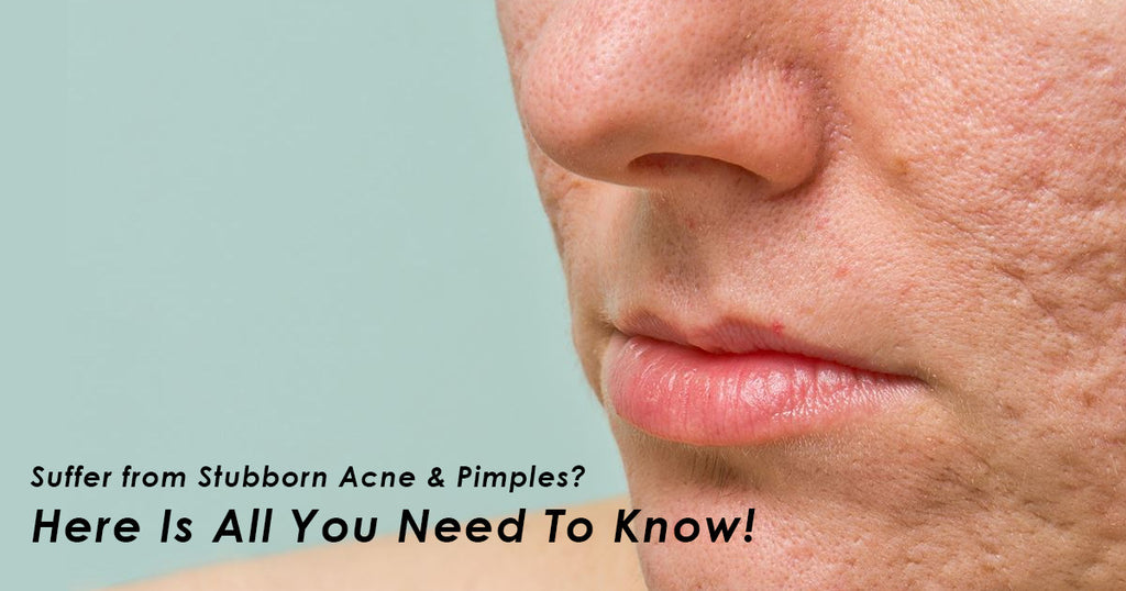 Suffer from Stubborn Acne & Pimples? Here Is All You Need To Know!