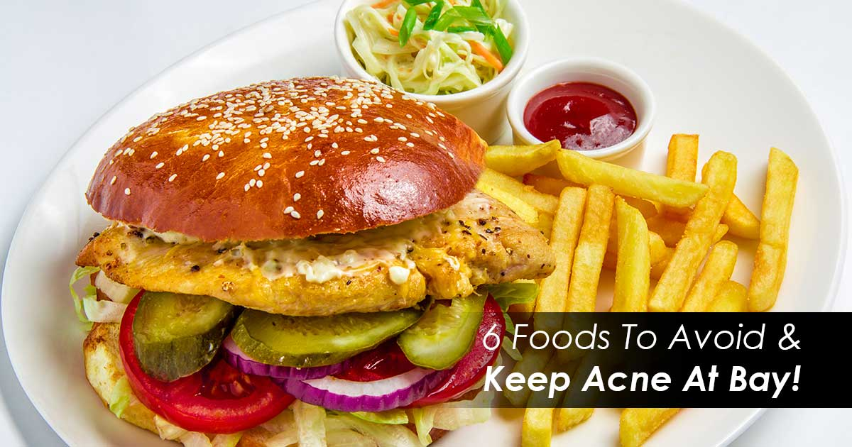 6 Foods To Avoid & Keep Acne At Bay!