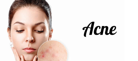 Most common skin problems