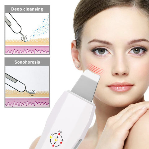 Ultrasonic Skin Scrubber Exfoliation Device Treatment Cleansing Tool Levandoo  Bestseller