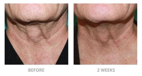 Image of Perfect Ageless Neck Cream