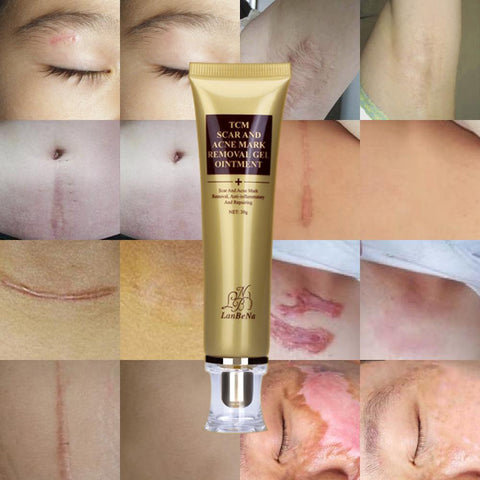 Acne Scar Removal Cream & Skin Repair Gel
