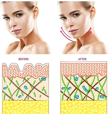 Microcurrent Facelift Skin Tightening Device