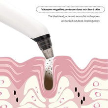 Load image into Gallery viewer, PoreSuction™ Microdermabrasion Kit Blackhead Remover Plus FREE Nano Facial Steamer
