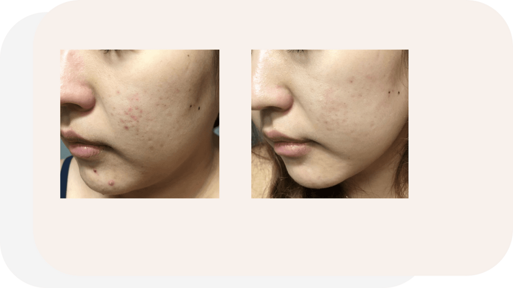 Maximum hydration and renewal for acne-prone skin
