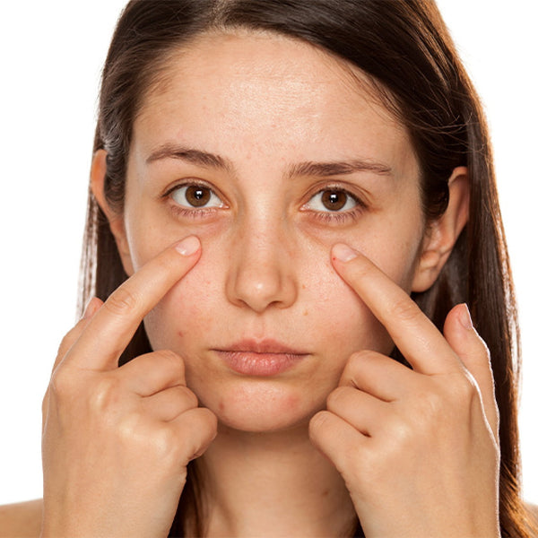 How To Remove Dark Circles Under Eyes Naturally in One Week