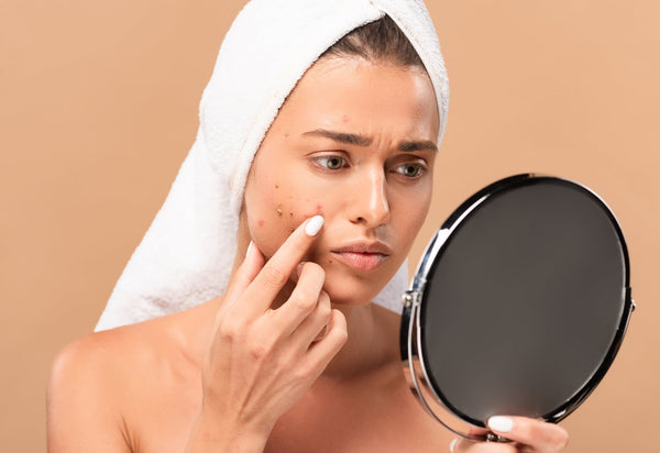 What does hormonal acne look like?