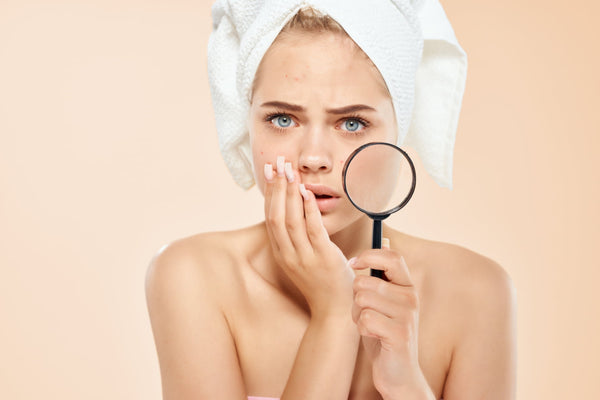 What causes adult acne to form?