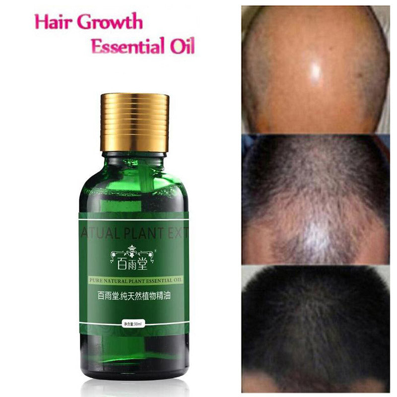 Organic hair growth essence Authentic 100% Hair Loss Liquid Health Care Beauty Dense Hair Growth Serum hair oil for fast growth