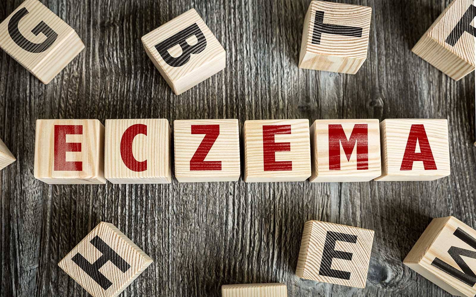 5 Easy Ways to Treat Eczema