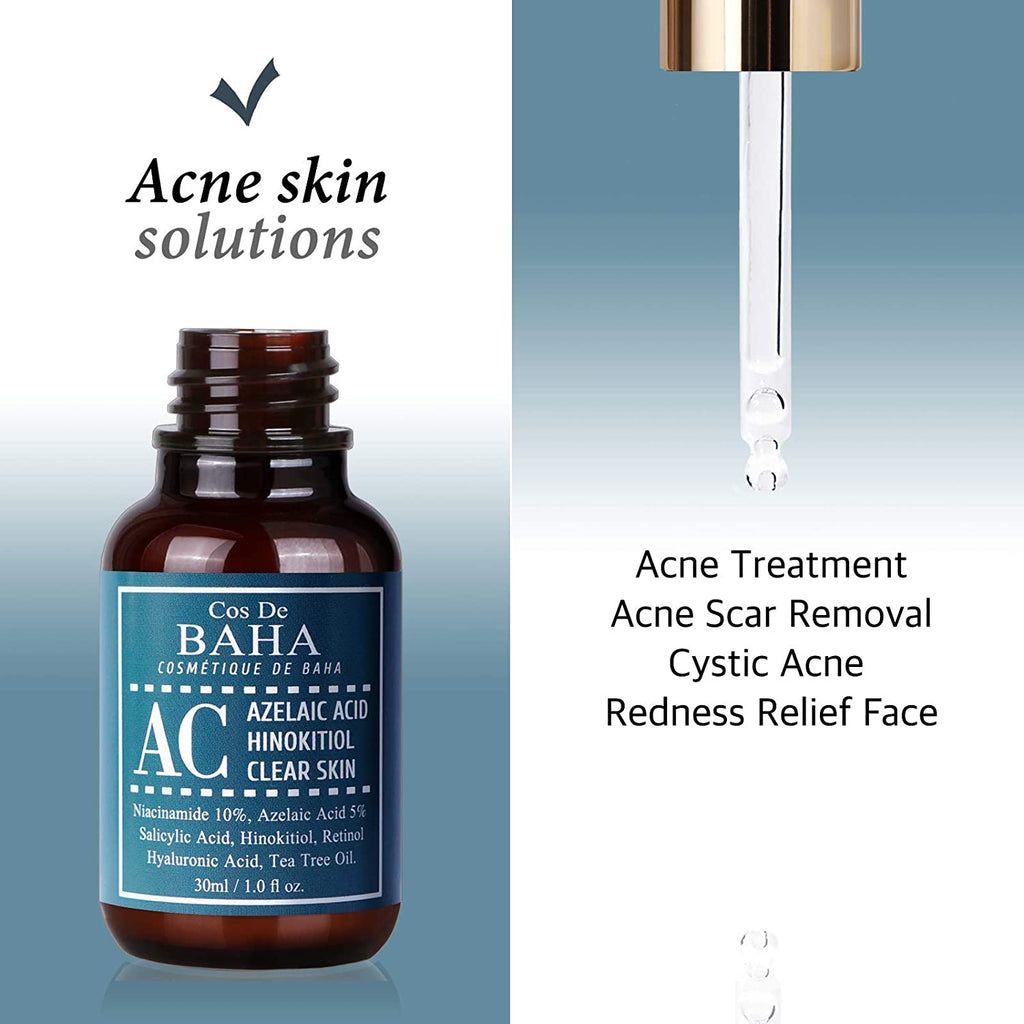 Acne Treatment Serum with Azelaic acid 5%, Niacinamide 10%, Salicylic Acid, Retinol, Tea Tree - Cystic Acne, Age-Defying Formula