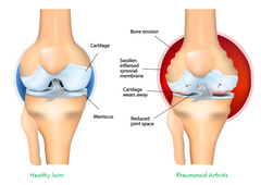 Joint and Arthritis Pain