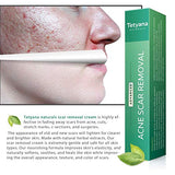 Scar Removal Cream Advanced Treatment For Face &Amp; Body Old &Amp; New Scars From Cuts Stretch Marks, C-Sections &Amp; Surgeries With Natural Herbal Extracts Formula