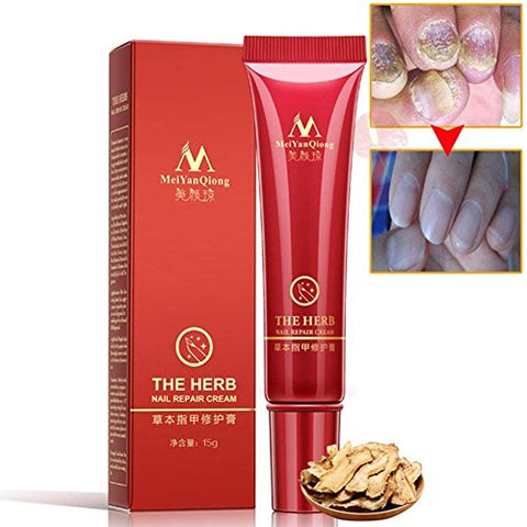 Inst Foot Nail Cream, Nail Fungus Treatments, Nail Antifungal Treatments, Nail Repair Cream (15G)