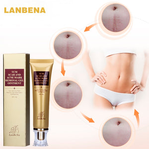 LANBENA Acne Scar Removal Cream Skin Repair Face Cream Acne Spots Acne Treatment Blackhead Whitening Cream Stretch Marks 30ml