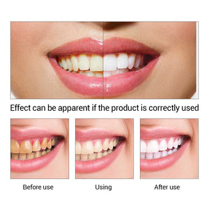 LANBENA Dental Oral Hygiene Teeth Whitening Product Cleaning Essence Powder Serum Removes Plaque Stains Smile Tooth Dental Tools
