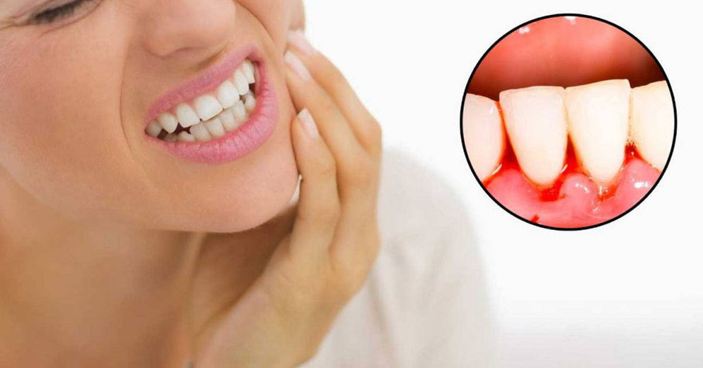 These 5 Easy Tips Can Help Anyone Improve Their Gums
