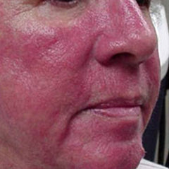Type 1 Rosacea Sufferer