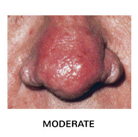 rosacea sub type 3 moderate