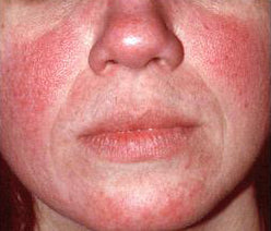 about rosacea sub type 1