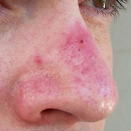 Rosacea Red Nose
